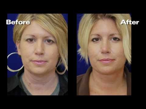 Dr. Hummel Neck Lift