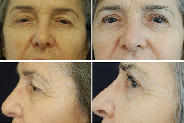 Blepharoplasty_Case_1117