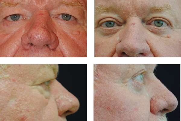 Blepharoplasty_Case_43921