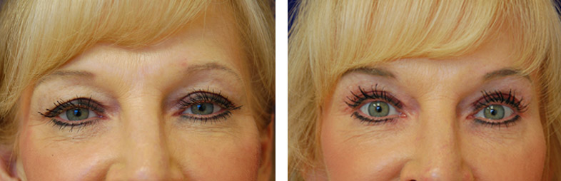 Blepharoplasty_Case_47