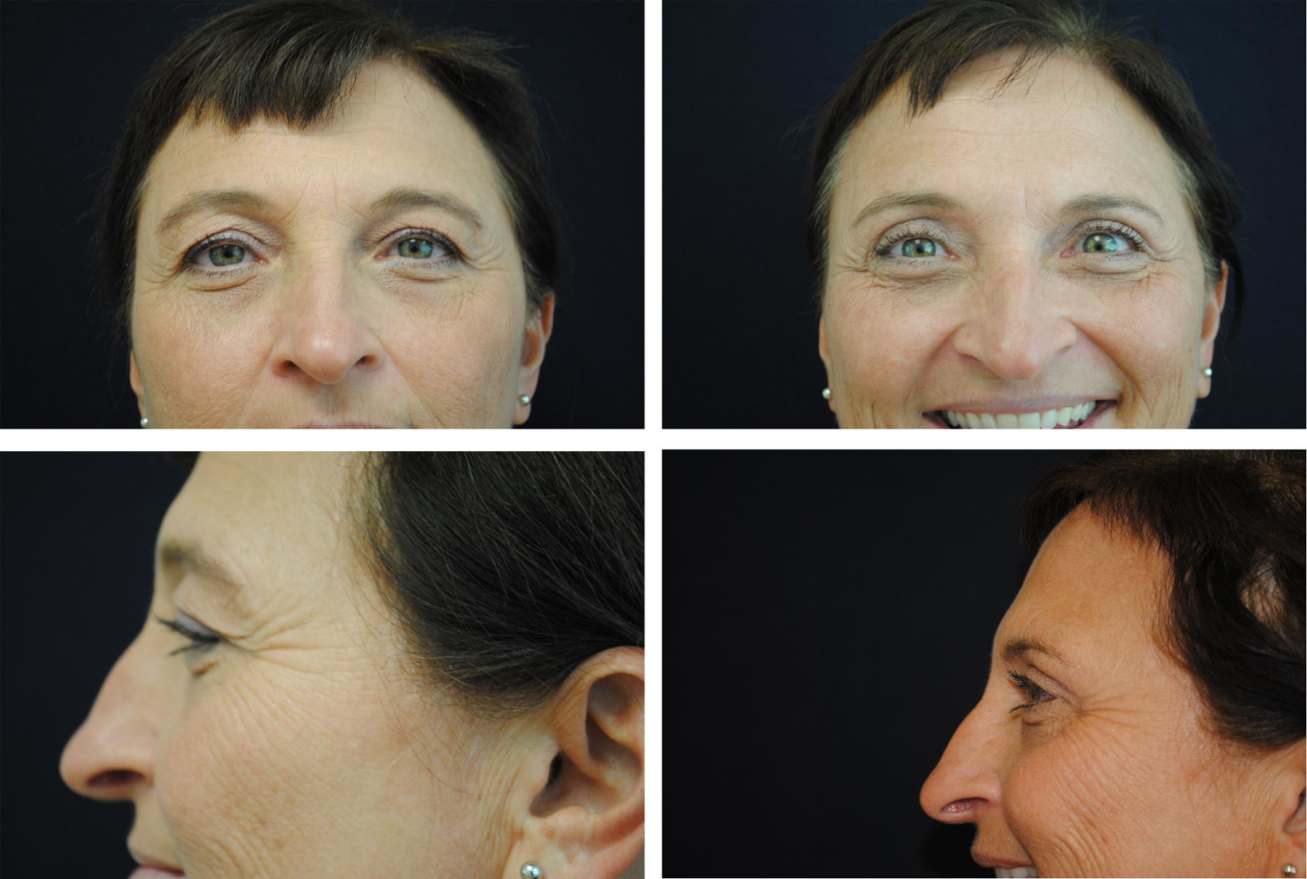 Blepharoplasty_Case_4818