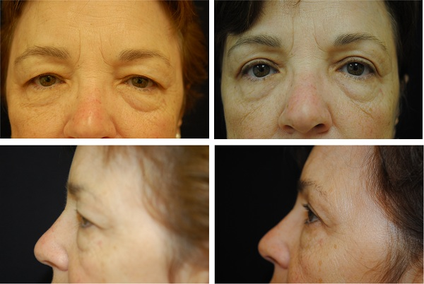 Blepharoplasty_Case_5439