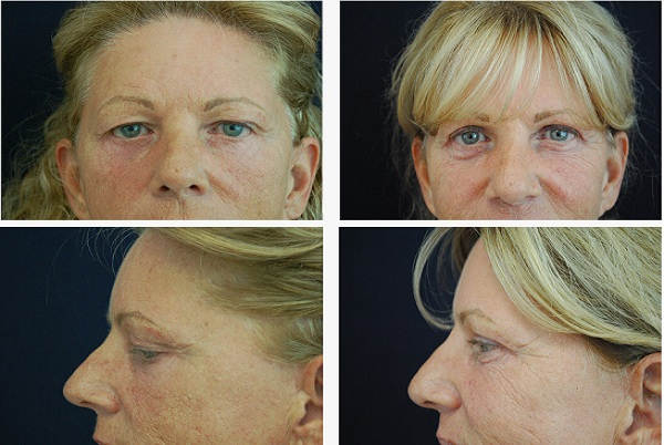 Blepharoplasty_Case_5694
