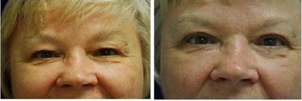 Blepharoplasty_Case_601