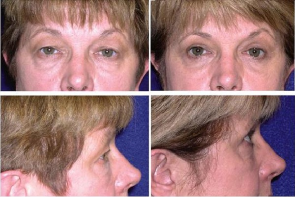Blepharoplasty_Case_605