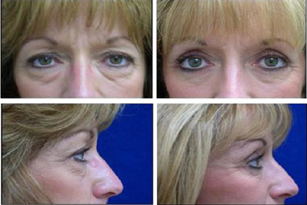 Blepharoplasty_Case_610