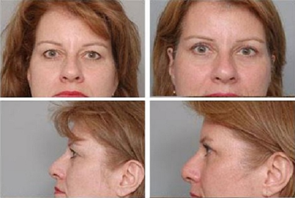 Blepharoplasty_Case_611
