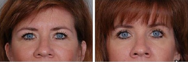 Blepharoplasty_Case_613