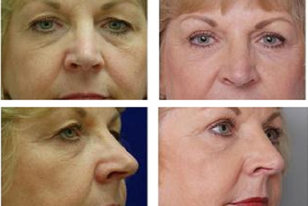 Blepharoplasty_Case_614