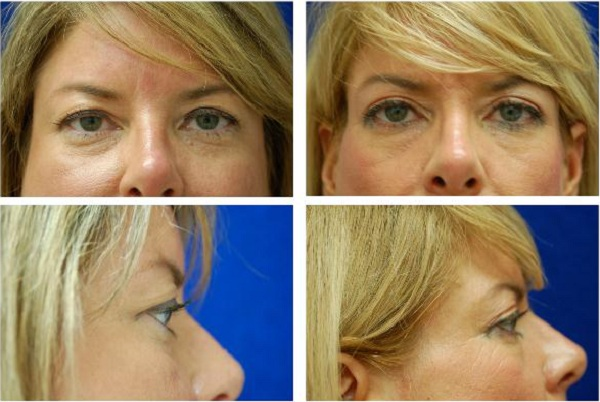 Blepharoplasty_Case_623