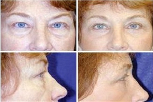 Blepharoplasty_Case_629