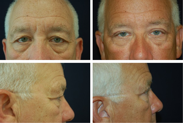 Blepharoplasty_Case_65221