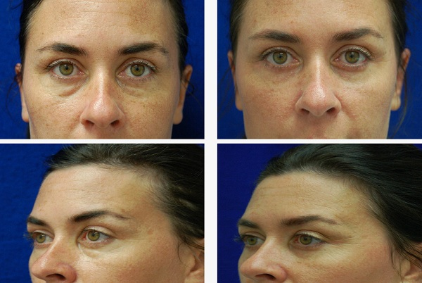 Blepharoplasty_Case_71101