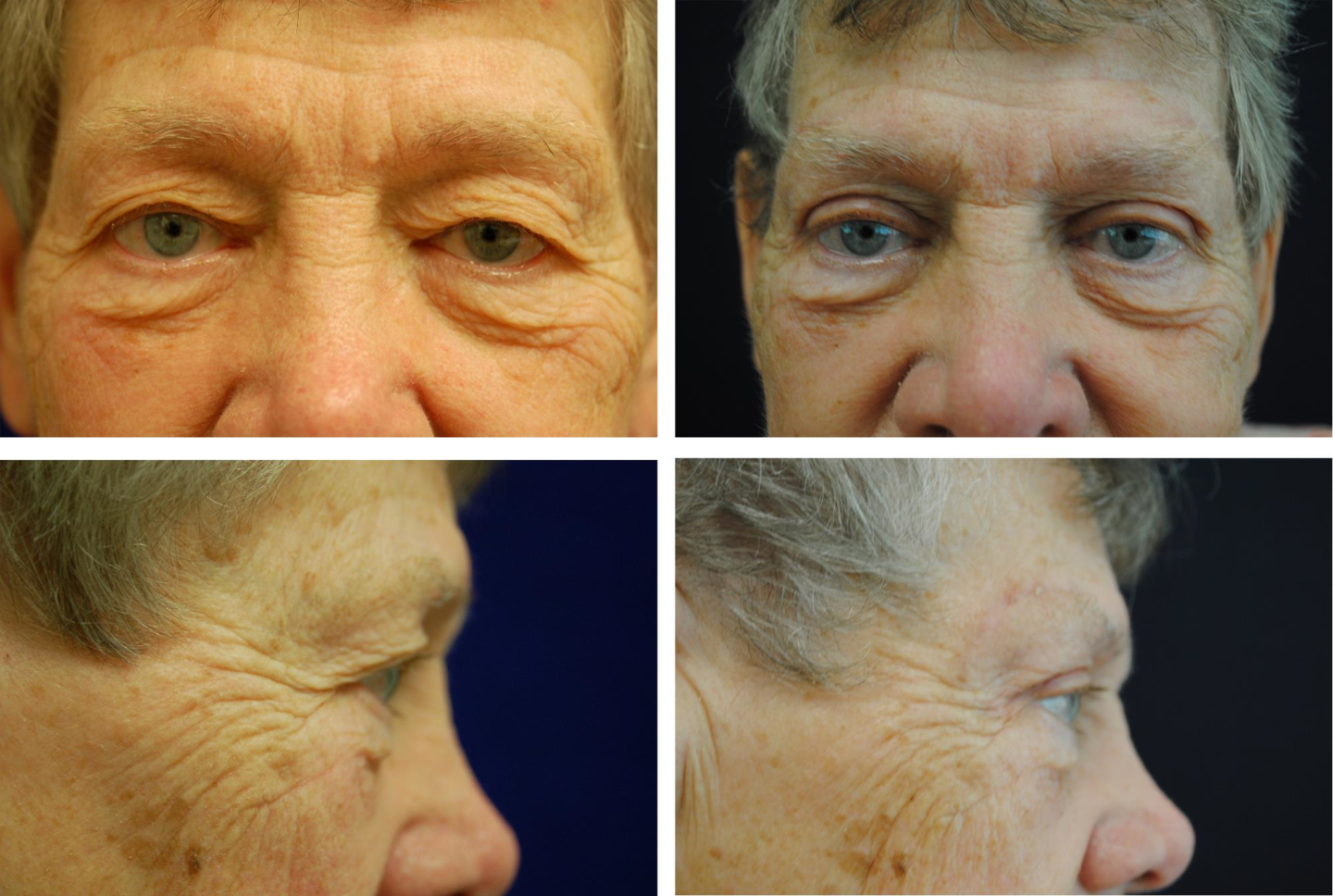 Blepharoplasty_Case_7196