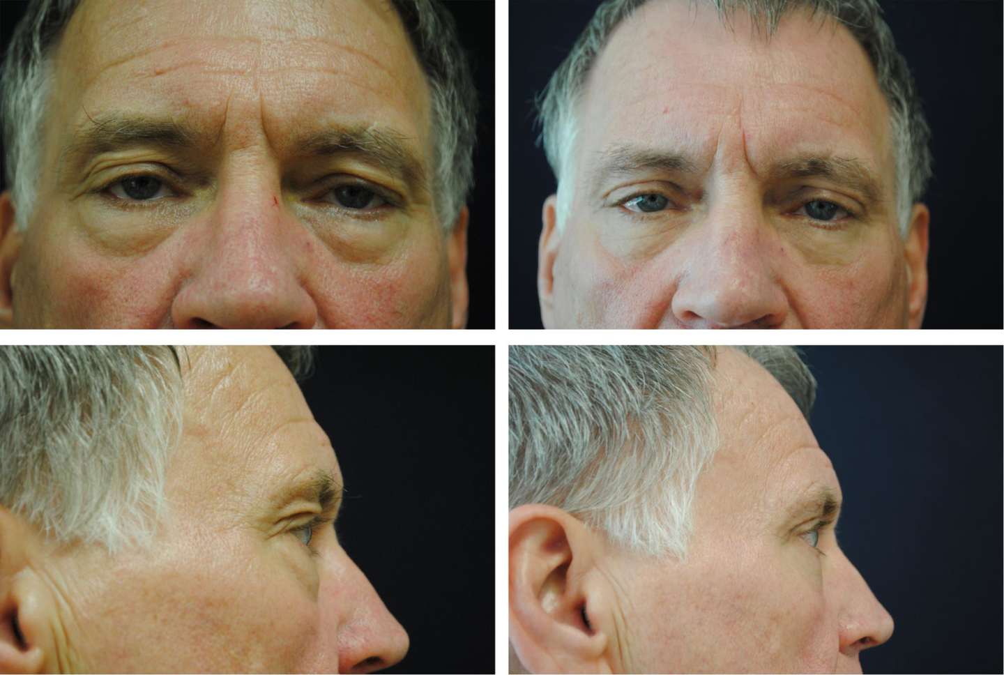 Blepharoplasty_Case_76961