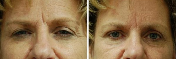 Blepharoplasty_Case_8609