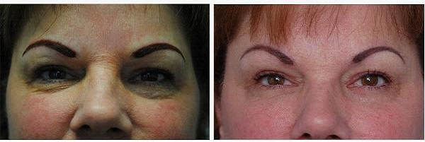 Blepharoplasty_Case_921
