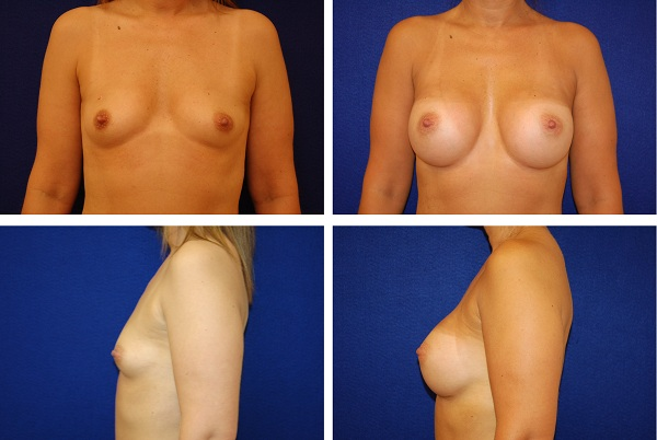 Breast_Augmentatioin_Case_50811