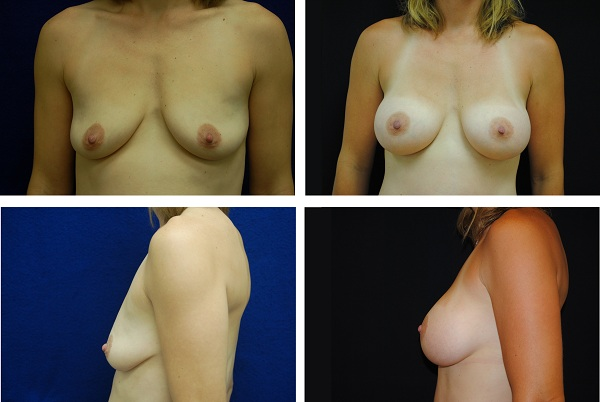 Breast_Augmentation_Case_09501