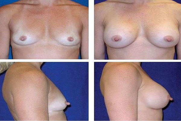 Breast_Augmentation_Case_1