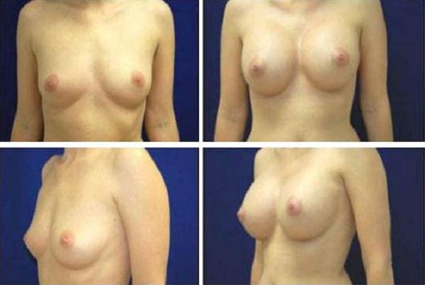 Breast_Augmentation_Case_105