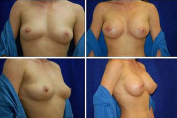 Breast_Augmentation_Case_106