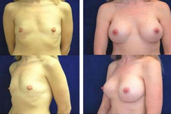 Breast_Augmentation_Case_108
