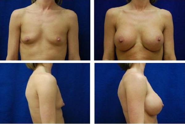 Breast_Augmentation_Case_1110