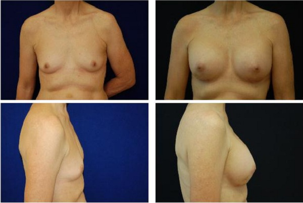 Breast_Augmentation_Case_1112