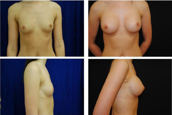Breast_Augmentation_Case_1113