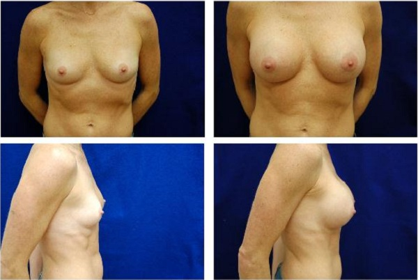 Breast_Augmentation_Case_1114
