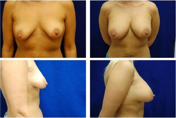 Breast_Augmentation_Case_1115
