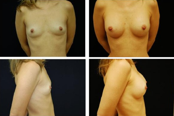 Breast_Augmentation_Case_1116