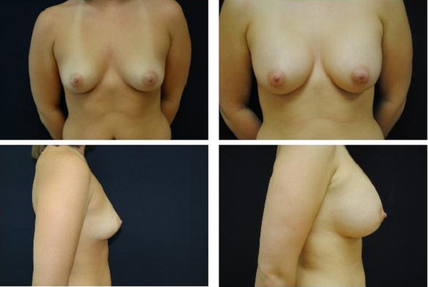 Breast_Augmentation_Case_1117
