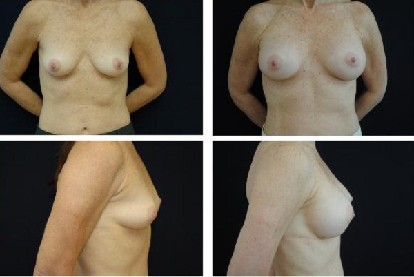 Breast_Augmentation_Case_1118