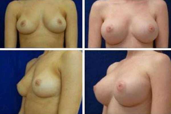Breast_Augmentation_Case_115