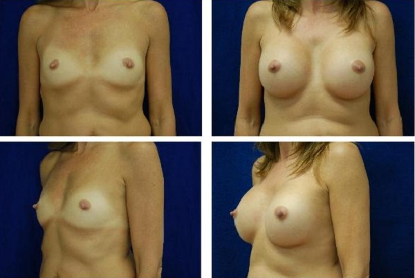Breast_Augmentation_Case_118