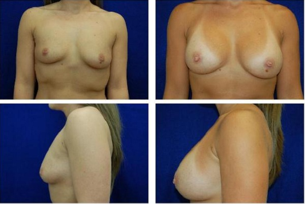 Breast_Augmentation_Case_119