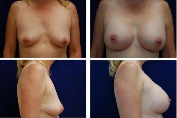 Breast_Augmentation_Case_120