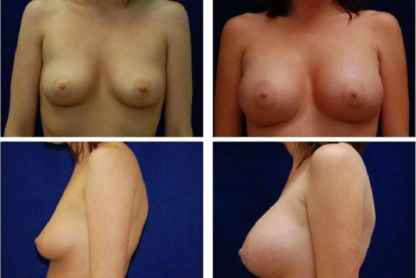 Breast_Augmentation_Case_121