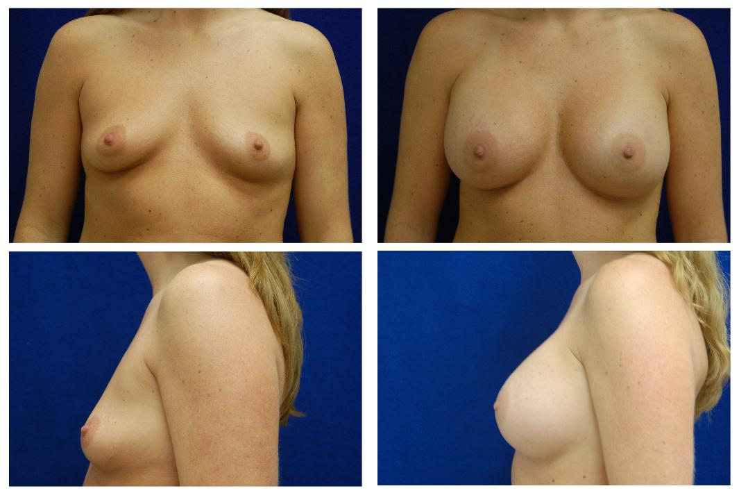 Breast_Augmentation_Case_122