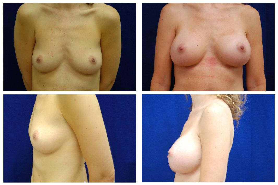Breast_Augmentation_Case_123