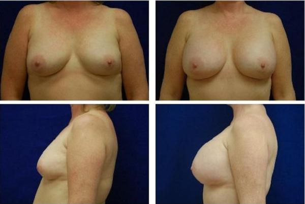 Breast_Augmentation_Case_126