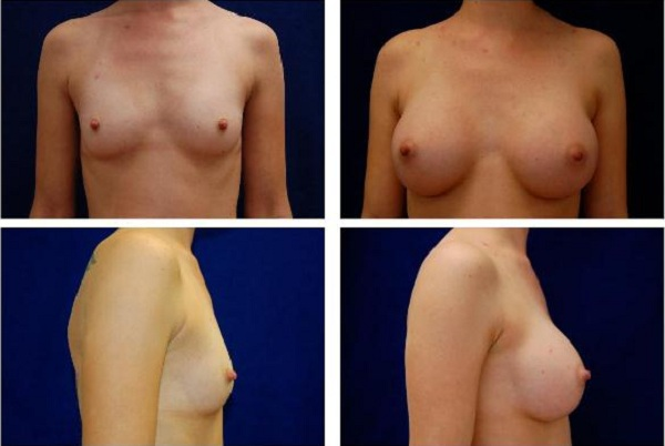 Breast_Augmentation_Case_127