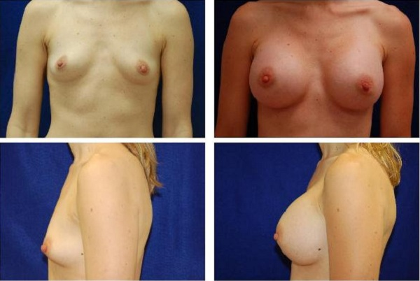 Breast_Augmentation_Case_128