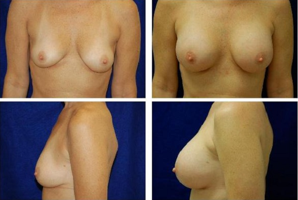 Breast_Augmentation_Case_129
