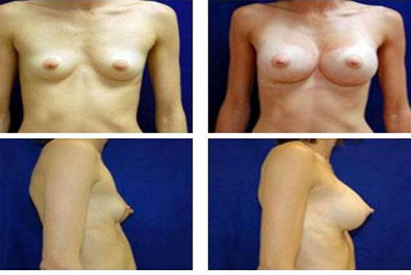 Breast_Augmentation_Case_13
