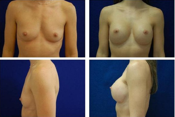 Breast_Augmentation_Case_131