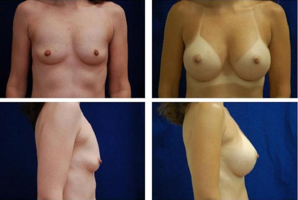 Breast_Augmentation_Case_132
