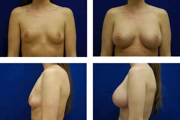 Breast_Augmentation_Case_1327
